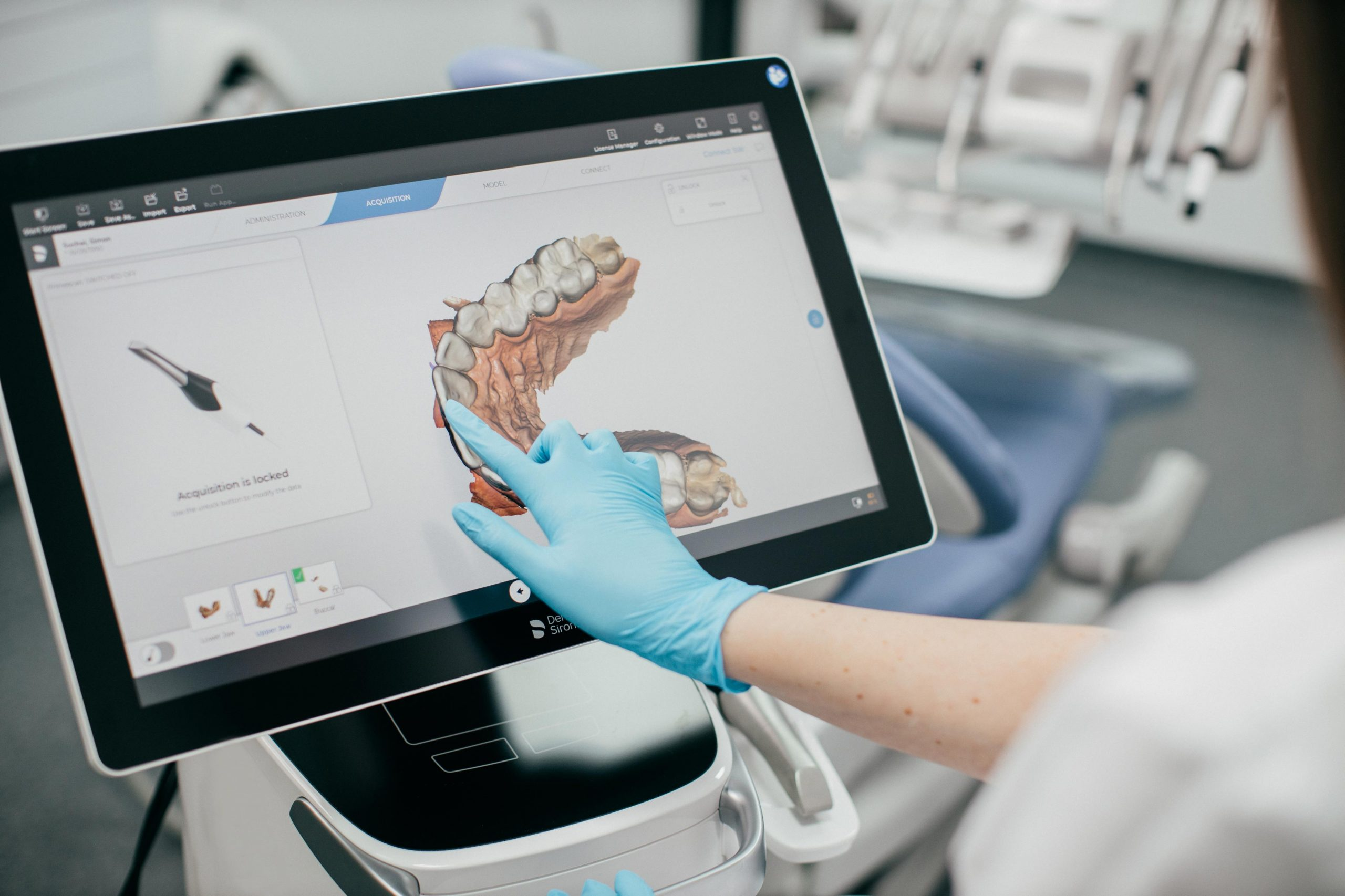 Intraorálny scaner
